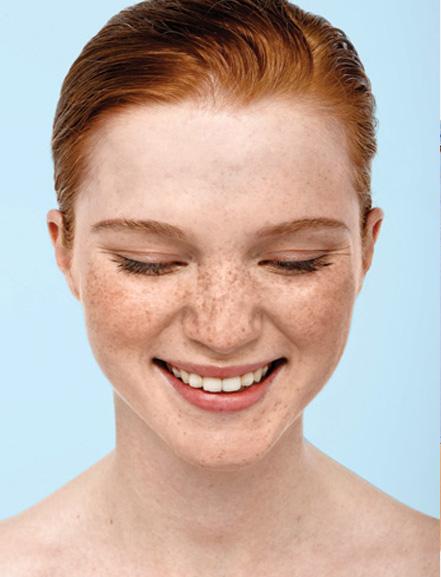 Guía definitiva para evitar las manchas en la piel